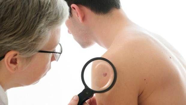 Starten Sie früh Hautkrebs Zeichen, die Sie wissen müssen - 8 Zeichen