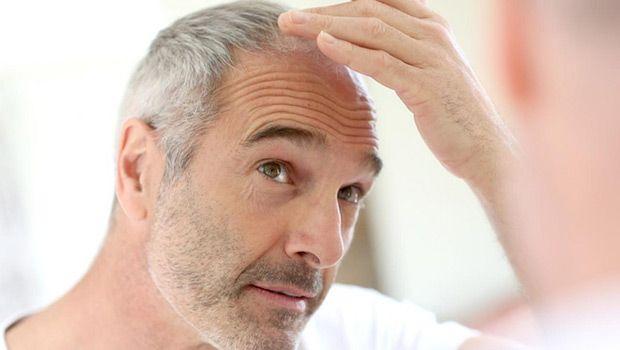 Wie Haarausfall bei Männern und Frauen natürlich zu stoppen - 7 Quick Tips