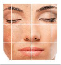 Die Pigmentierung der Haut heilen