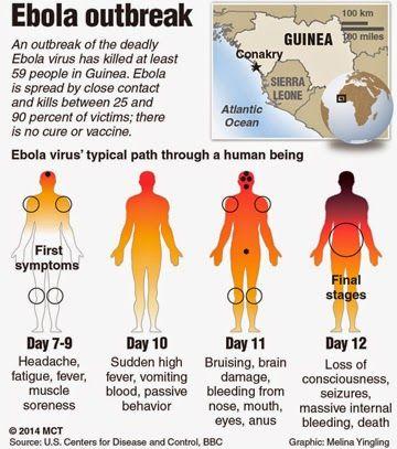 Anzeichen und Symptome von Ebola